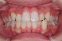 混合歯列期・空隙歯列