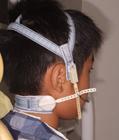 第1治療装置