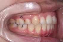 混合歯列期・開咬